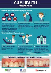 Diabetes and gum disease: information for patients